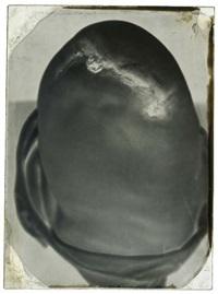 moignon de genou d'un soldat de la guerre de 1870, hôpital de campagne, lille by auguste houze de l' aulnoit