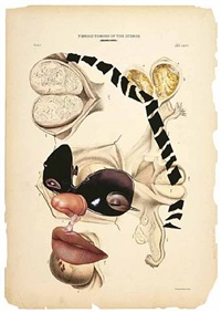 fibroid tumors of the uterus by wangechi mutu