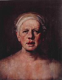 self portrait with nose bleed by odd nerdrum